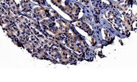 Wenn der Krebs von der Prostata in die Knochen streut